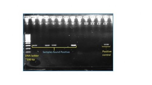 Detection of sporozoites in <em>Anopheles Mosquitoes by</em> Multiplex PCR.