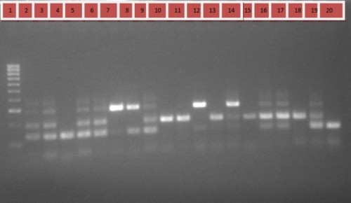 PCR products obtained using the AS (Allele specific) -PCR on Deltamethrin suceptible <em>An. gambiae s.l</em> after separation on a 2% agarose gel. Lane 1: 1000 bp DNA ladder Lane 4, 7,8 12and 20: homozygous wild type mosquitoes (L1014L/L1014L) (137bp); Lane 2, 3, 5,6,,9,13,14,16,17 and 19 heterozygous specimens (L1014L/ L1014F) (195/137bp); Lane 10,11,15 and 18: homozygous resistant specimen (L1014F/ L1014F) (195bp).