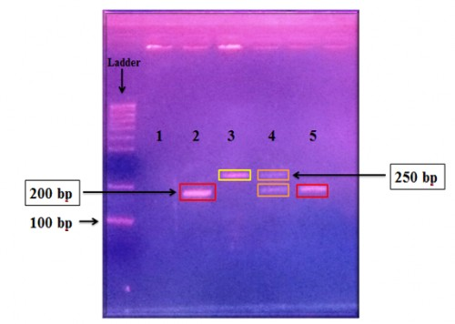 2% Agarose gel electrophoresis of PCR product from the flanking region of the CQ 11 microsatellite of Cx. pipiens, fragments amplified with pipCQ11R, molCQ11R, and CQ11F2 specific primers. The lane M= Marker (size standard 100-bp ladder), lane 1= Negative control, 2 = <em>Cx. pipiens f. pipiens</em>, lane 2 = <em>Cx. pipiens f. molestus</em>, lane 3 = <em>Cx. p. pipiens/</em> molestus hybrids, lane 4 = Positive control
