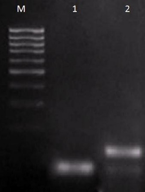 Restriction analysis of dengue virus serotype-specific RT-PCR assay products on a 1% Agarose gel electrophoresis. Lane M, 100-bp DNA ladder (Genei Bangalore); lane 1, RT-PCR assay amplification with RE (BanII) digestion of DEN-1 product, 110 bp; lane 2, RT-PCR assay amplification with RE (BanII) digestion of DEN-2 product, 130 bp