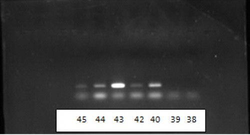 Electrophoresis images of PCR ITS1 products. Lanes 38 and 39: no result, Lanes 40 and 42: L. major, lanes 43 and 44: Unnamed Leishmania, lane 45: L.tropica.