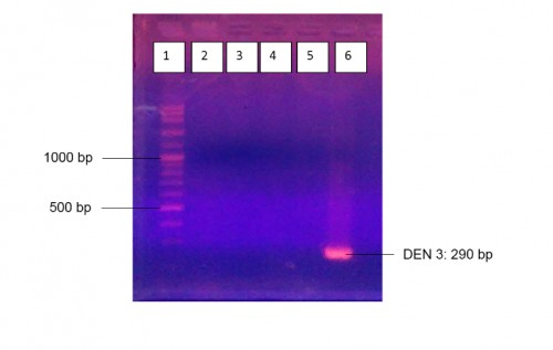 The result of RT-PCR using Lanciotti primers to detect serotype of Dengue virus in adult mosquitoes from 4 areas in Potorono, Banguntapan, Bantul on agarose gel 2%. Line 1: Marker 100 bp DNA ladder: line 2: RT 1 negative; line 3: RT 3: negative; line 4: RT 7: negative; line 5: negative; line 6: positive control DEN 3