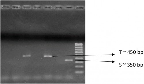 PCR gel plate showing sibling complexes (S & T) of <em>An. fluviatilis</em>