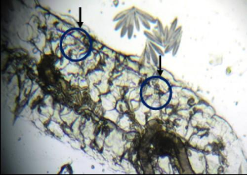 Parous ovary (tracheoles unwound) according to Detinova (CREC, 2013)